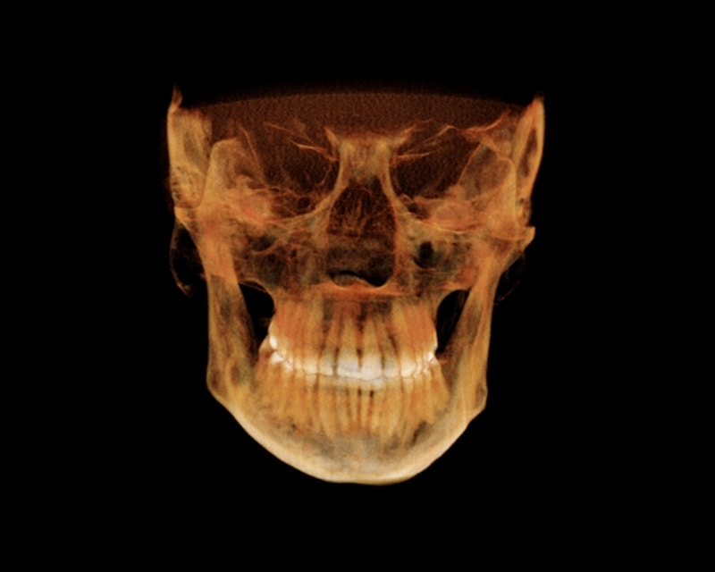 https://www.oralradiologists.com/oralradiologist/wp-content/uploads/2017/08/cbct-reporting.jpg